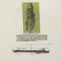 Hobble & Swab; Lithograph, Etching; Object size: 190 x 141 mm