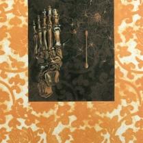 Hobble & Swab II, 2011; Etching; Image size: 447 x 313