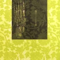 Hobble & Swab, 2011; Etching; Image size: 464 x 333